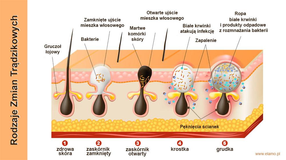 rodzaje trądziku pospolitego (acne vulgaris)
