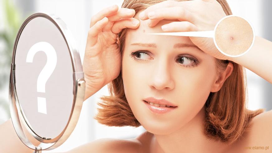 jak zwalczyć trądzik - młoda kobieta przegląda w lustrze objawy trądziku